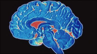 Parkinson - Vício Sexual